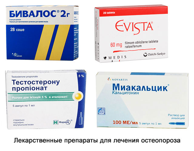ранелат стронция, ралоксифен, тестостерон, кальцитонин