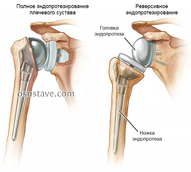 замена плечевого сустава