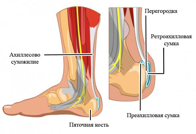 локализация синовиальных сумок в области ахиллова сухожилия и пяточной кости