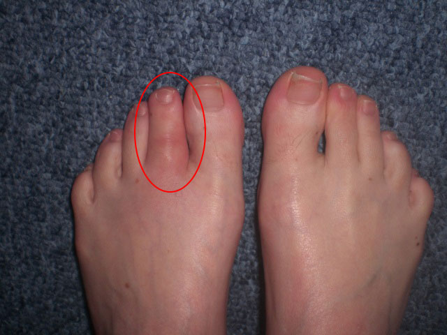 реактивный артрит второго пальца левой стопы
