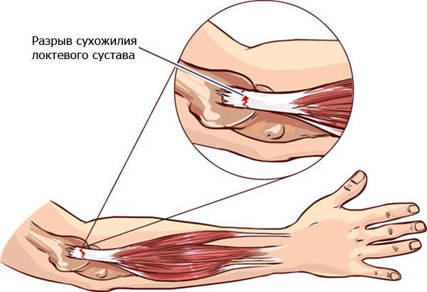 разрыв сухожилия локтевого сустава