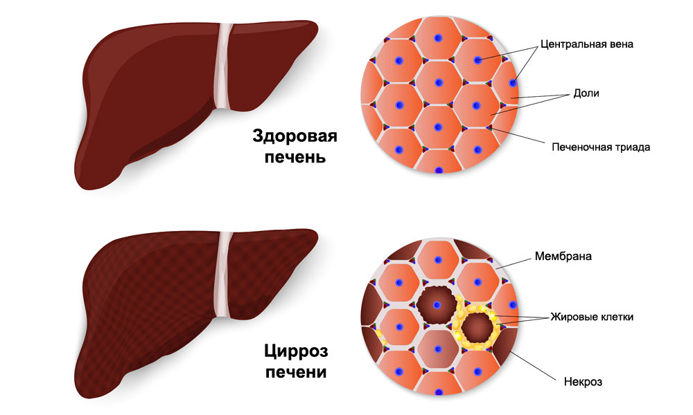 Лекарственный гепатит осложнения