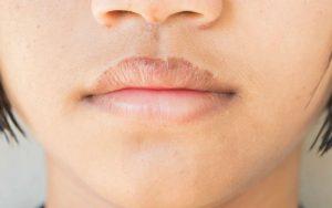 Растрескавшиеся губы у женщины
