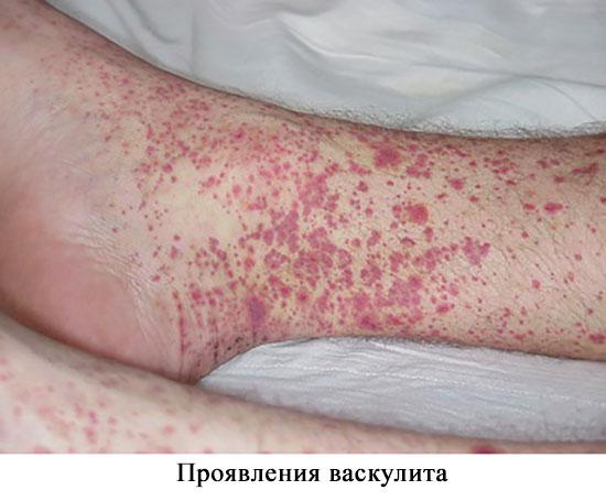 проявления васкулита