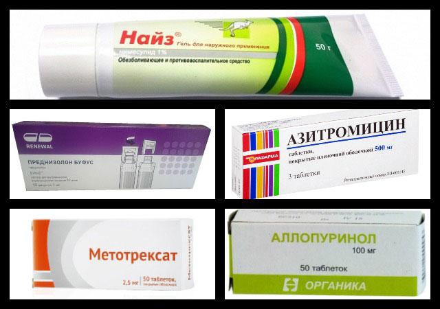 лекарственные препараты азитромицин, метотрексат, аллопуринол и другие