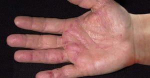 Народные средства для лечения дерматита