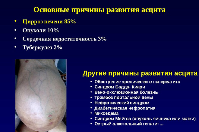 Причины появления жидкости в животе при циррозе печени