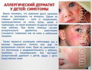 Какими методами лечить атопический дерматит
