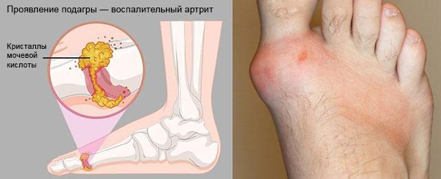 проявление острой подагры в виде артрита большого пальца ноги