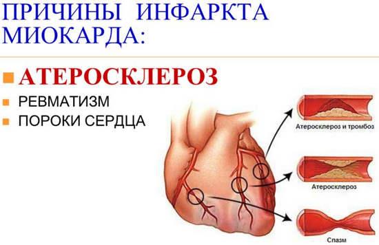faktory-sposobstvuyushchie-vozniknoveniyu-infarkta