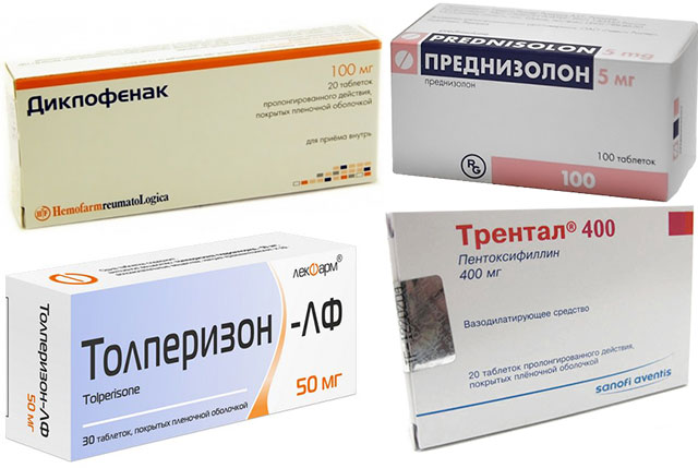 препараты Диклофенак, Преднизолон, Трентал и Толперизон