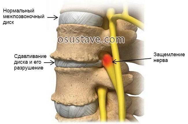 защемление нерва в результате остеохондроза