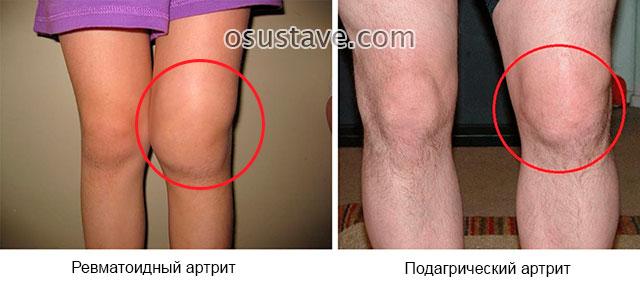 ревматоидный и подагрический артриты