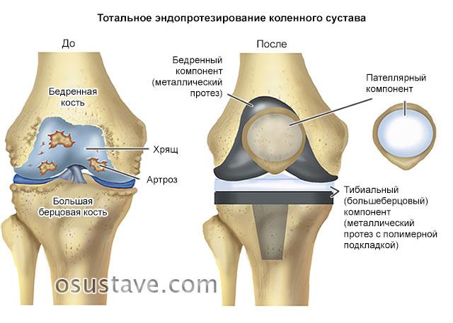 тотальное эндопротезирование коленного сустава