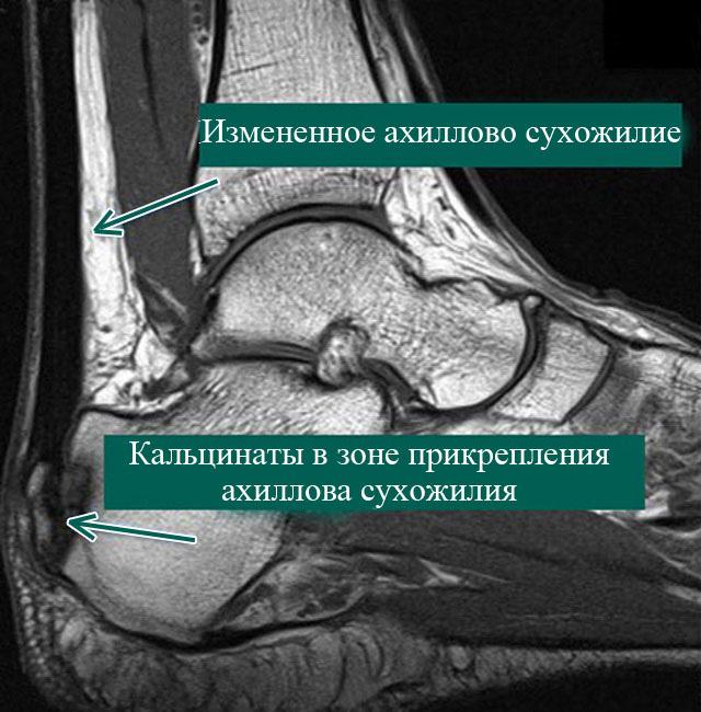 тендинопатия ахиллова сухожилия на МРТ