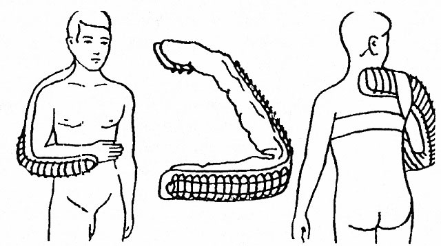 правильно наложенная шина при переломах плечевой кости