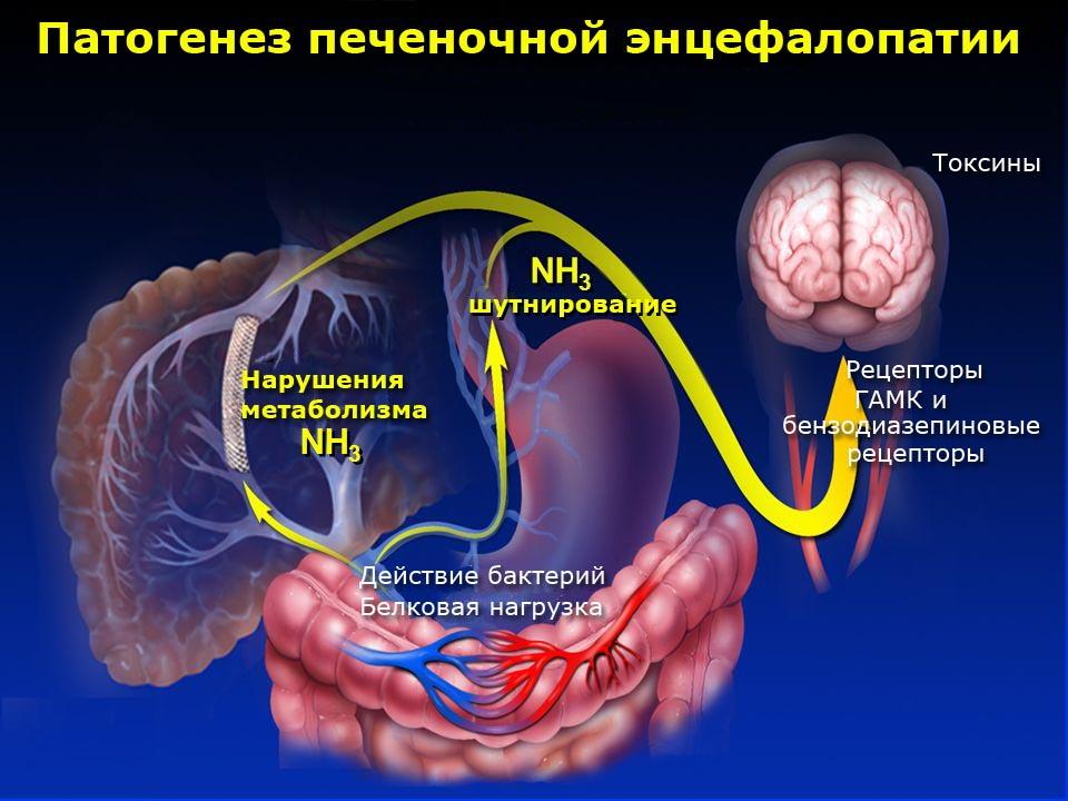 Печеночная энцефалопатия симптомы