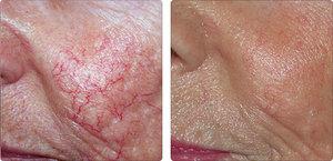 Применение народного лечения от купероза