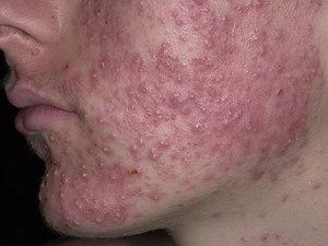 Аллергические высыпания на лице