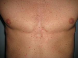 Главные причины высыпания на груди