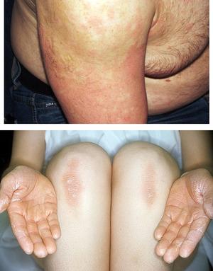 Лечение кератоза