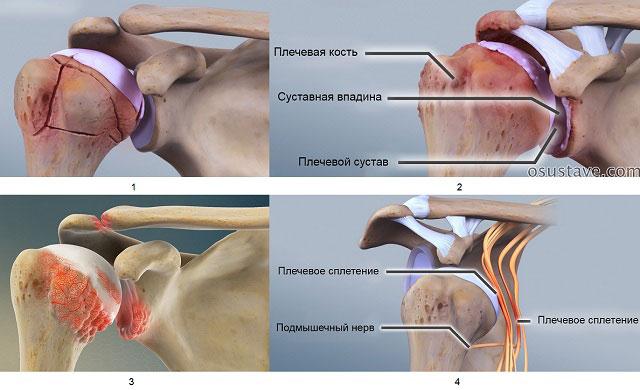 1 – перелом плечевой кости, 2 – артроз, 3 – артрит, 4 – плексит и неврит