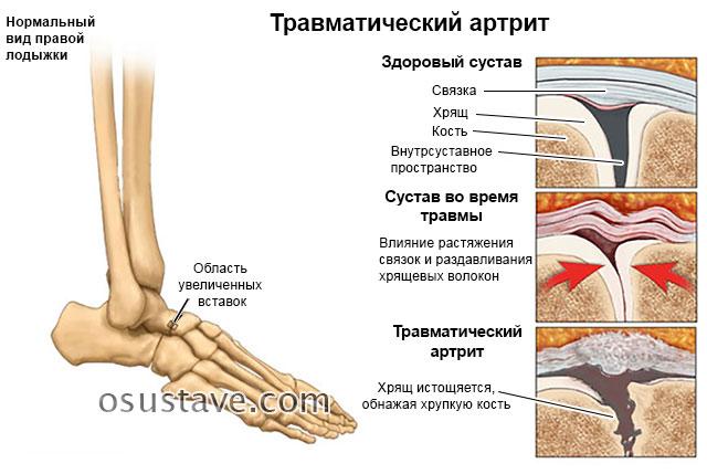 травматический артрит голеностопа
