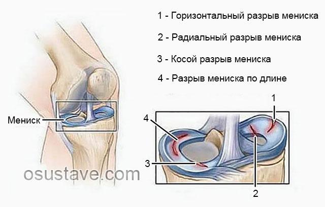 типы разрывов мениска в коленном суставе