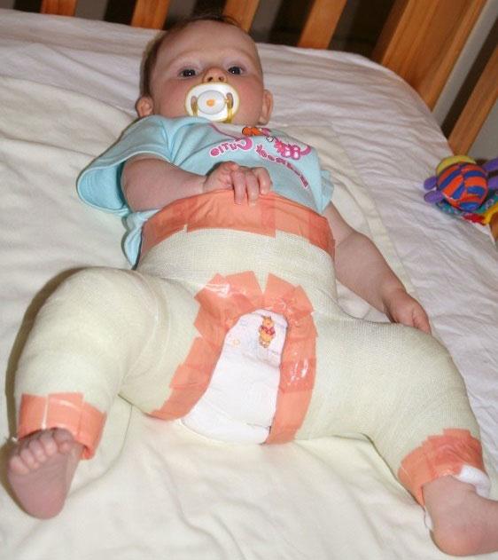 младенец в кокситной гипсовой повязке