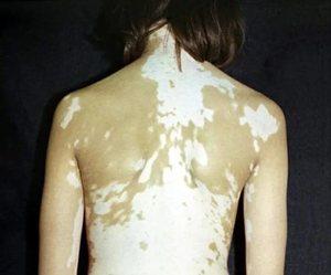 Белые пигментные пятна - когда нужно обратиться к врачу