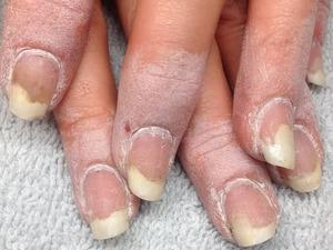 Способ применения цинковой пасты от грибка ногтей