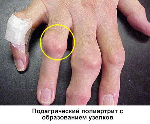 подагрический полиартрит