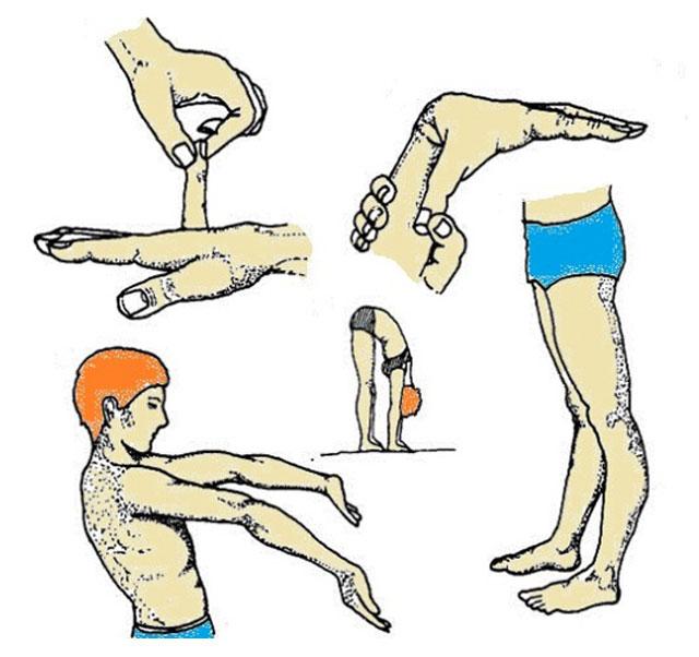 признаки синдрома гипермобильности суставов