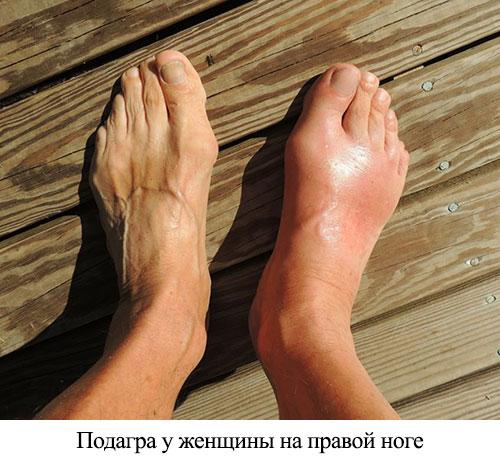 подагра у женщины на правой ноге