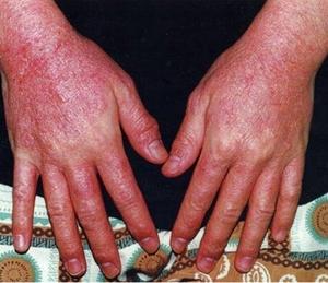 Симптоматика дерматита