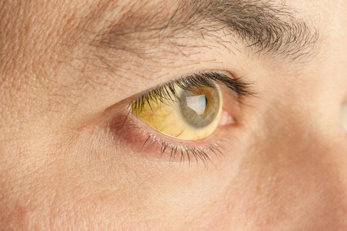 Механическая желтуха симптомы