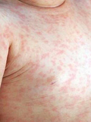 менингококковая инфекция сыпь