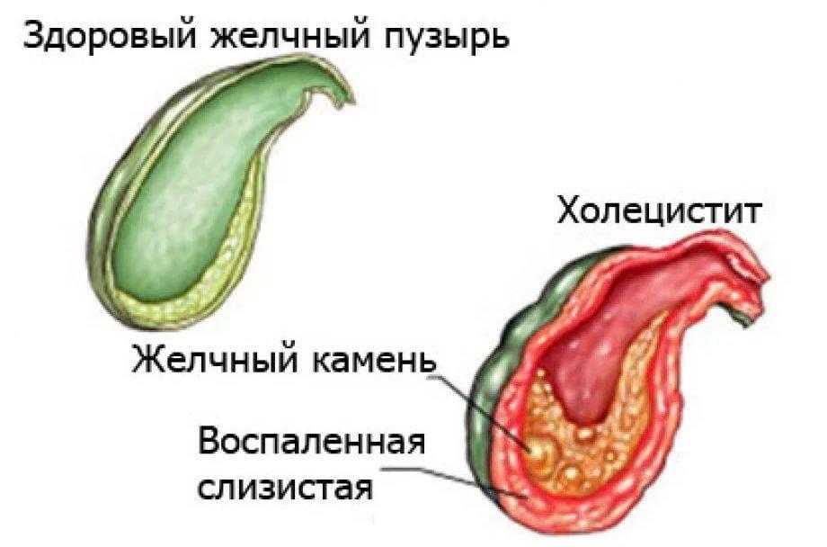 Воспаление печени и желчного пузыря