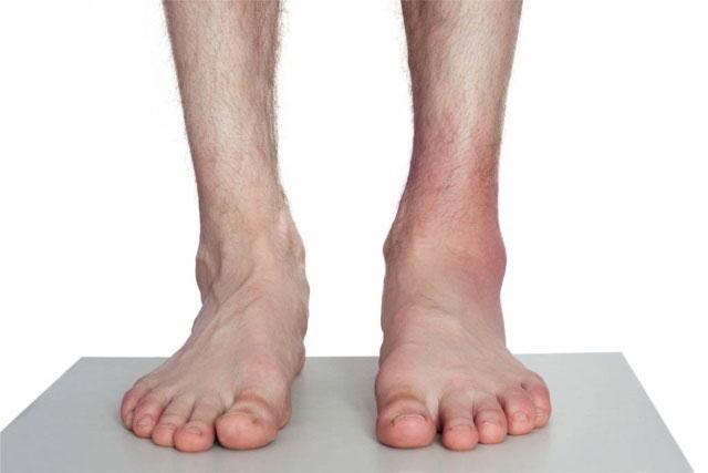 растяжение связок левого голеностопного сустава, отмечается отек и гиперемия