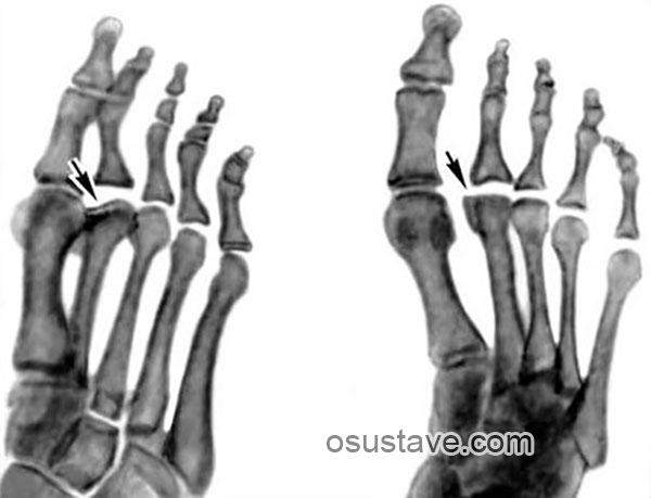 рентгенограмма стоп при болезни Фрейберга