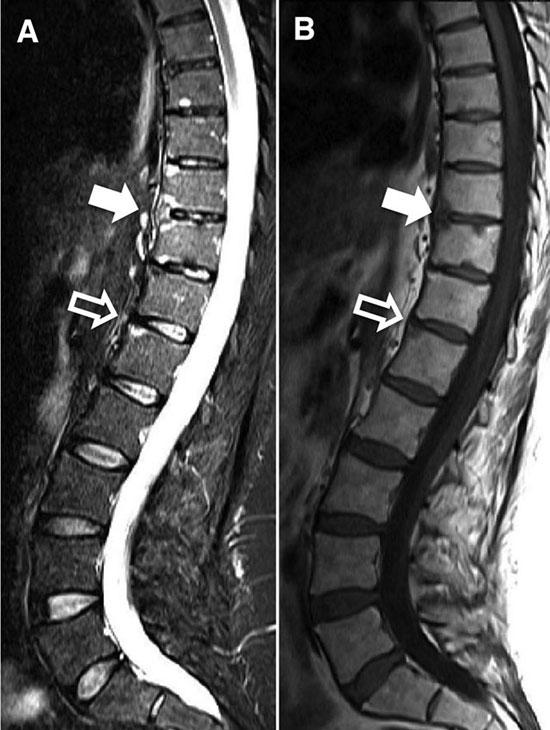 МРТ позвоночника с анкилозирующим спондилоартритом