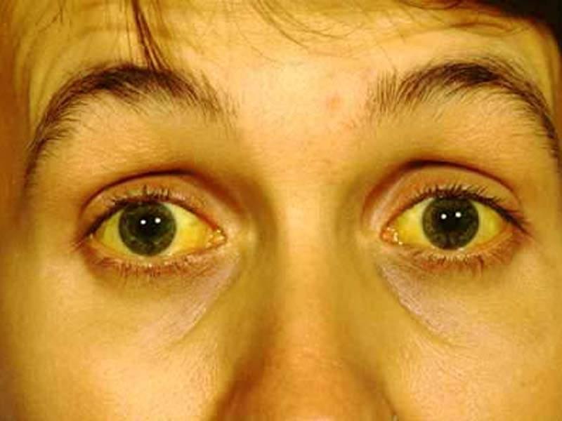 Симптомы гемангиом в печени