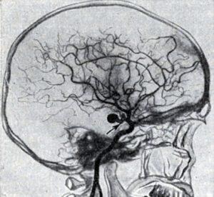 Томография является наиболее эффективным методом диагностики