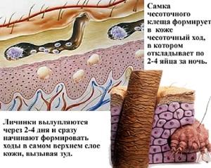 Какими препаратами лечить чесотку