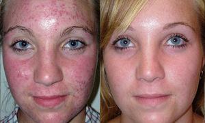 Особенности скрытия пятен на лице