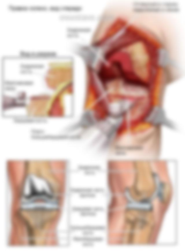 процедура замены коленного сустава