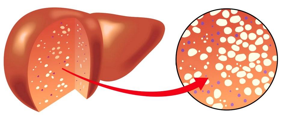 Стеатогепатоз стадии