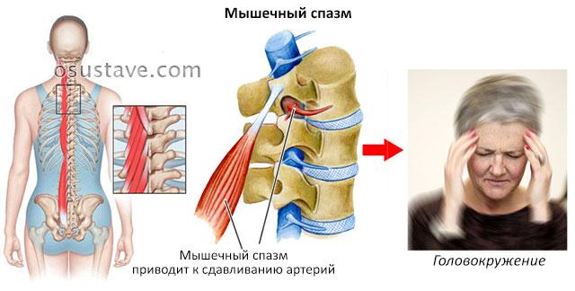 мышечный спазм и головокружение