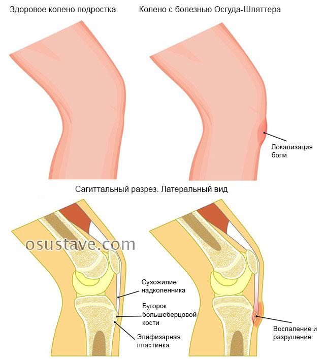 больное и здоровое колено