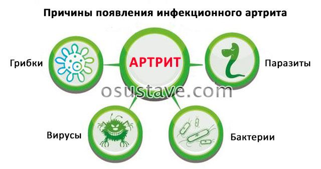 причины появления инфекционного артрита